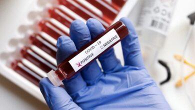 Photo of 198 новых случаев заболевания коронавирусной инфекцией выявлено в Подмосковье
