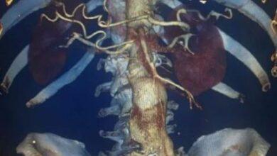 Photo of Ивантеевские врачи выявили разрыв аневризмы брюшной аорты у пациента