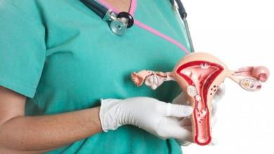 Photo of Ивантеевские гинекологи рассказали о симптомах миомы матки