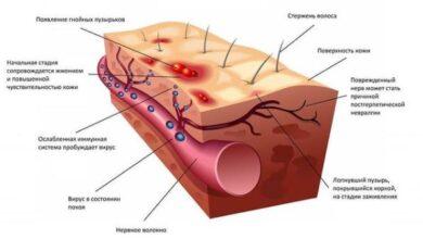 Photo of Принципы лечения опоясывающего лишая физиотерапевтическими методами