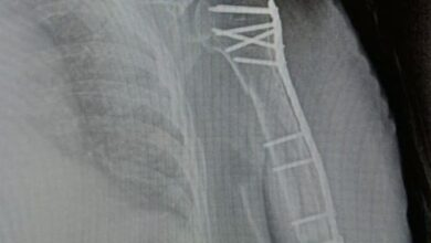 Photo of Ивантеевские травматологи помогли пациентке с травмой плеча